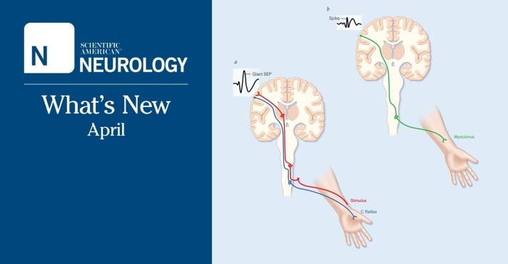 neurology_whatsnew_april1