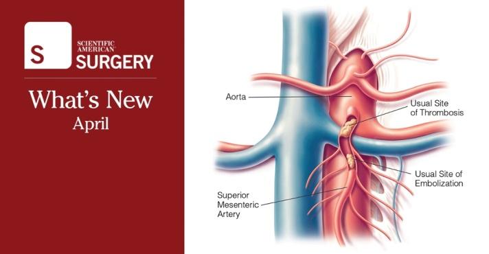 Surgery_WhatsNew_april