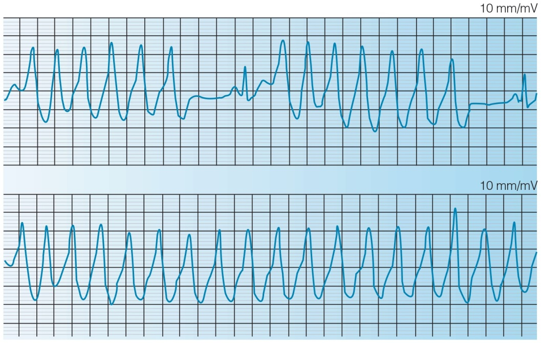 Ambulatory monitoring strip of a patient with recurrent presyncope shows repetitive monomorphic ventricular tachycardia.